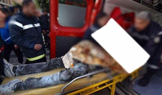 طالب يضرم النار في جسده