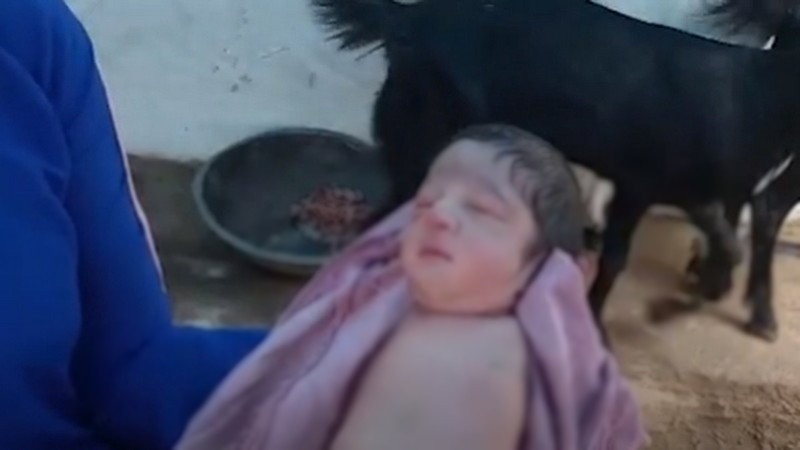 ولادة طفل بدون أطراف