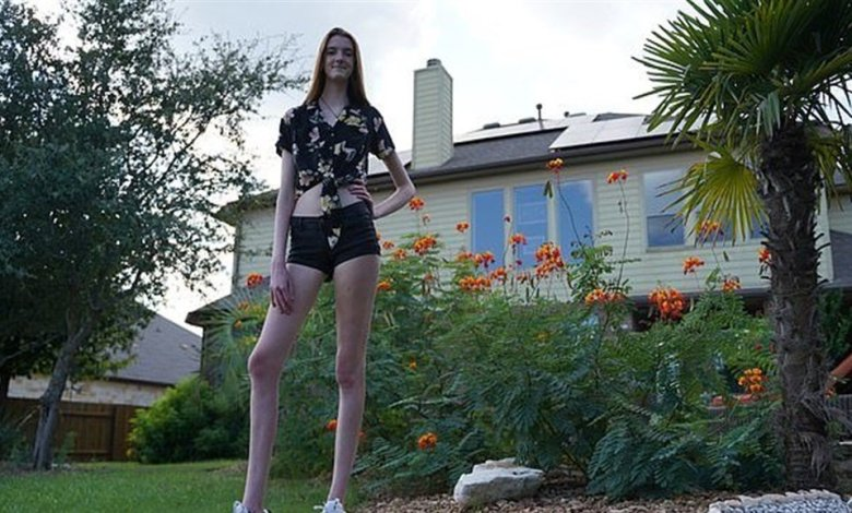 صاحبة أطول ساقين في العالم تدخل جينيس ـ فيديو ـ