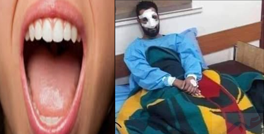 زوجة تعض أنف زوجها وتفصله بسبب علاقاته مع الفتيات
