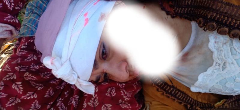 المحمدية.. زوج يعتدي بوحشية على زوجته